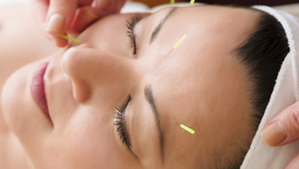Acupuncture Assignment Help